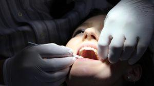 arrancando dente